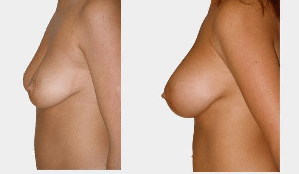 Sagging + Implants