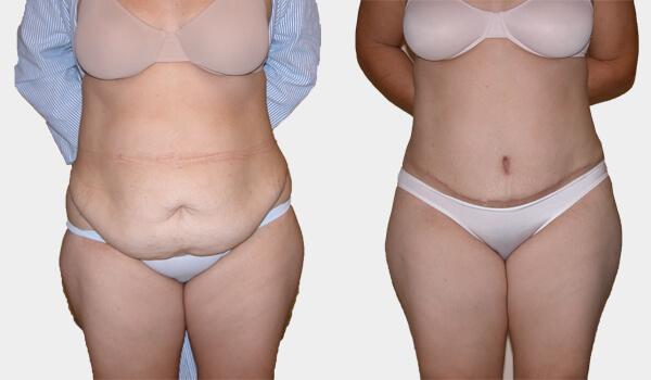 Tummy Tuck Abdominoplasty