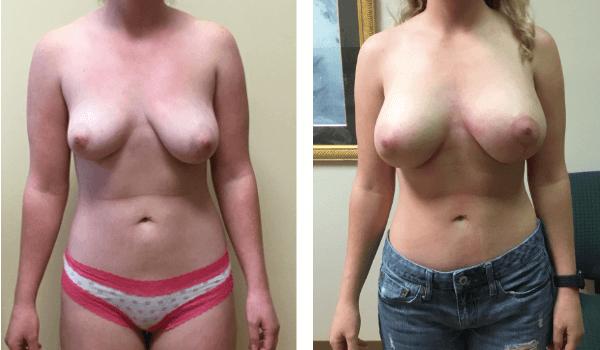 Breast asymmetry surgery