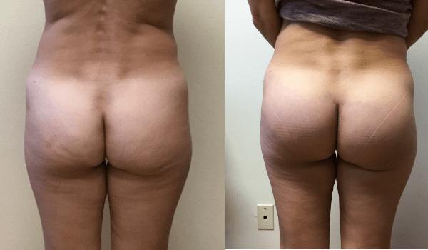 Buttocks Implants