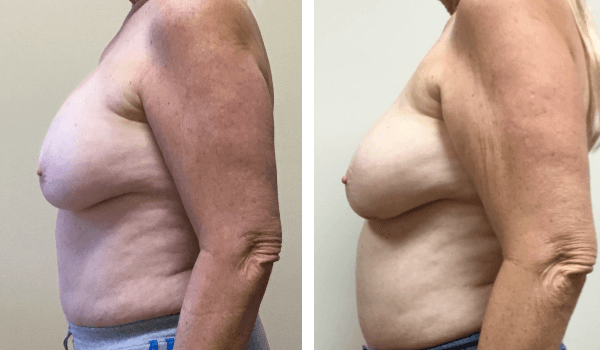 Implant Removal Capsulectomy