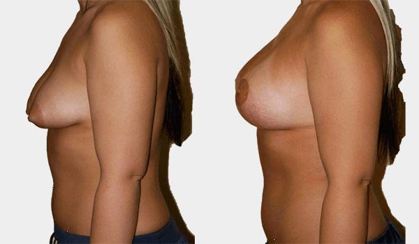Breast Lift + Augmentation