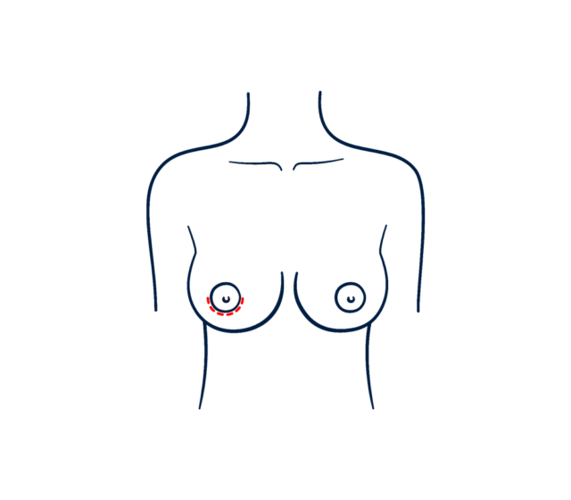 Breast augmentation with periareolar incision