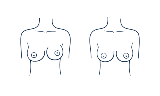 Capsule contracture that causes breast asymmetry