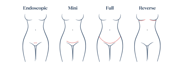 4 versions of the Tummy Tuck