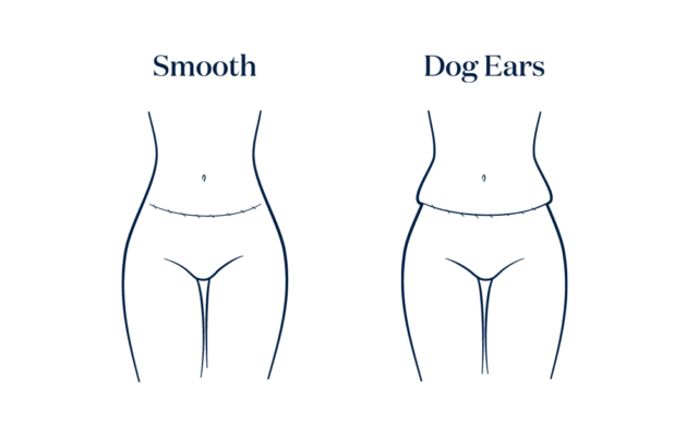 Tummy Tuck with dog ears